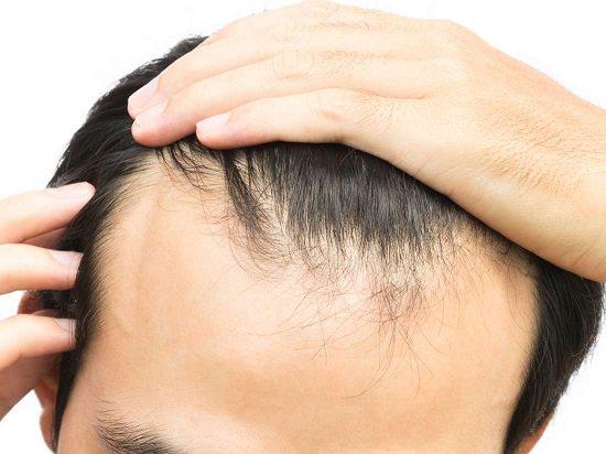 Improves Hair Growth