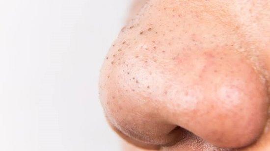 Benefits of sweet orange essential oil for skin2