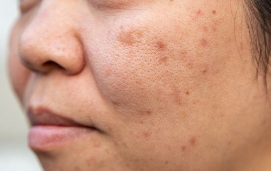 How to Remove Age Spots With Hydrogen Peroxide1