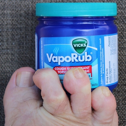 How to Get Rid of Toenail Fungus With Vicks2