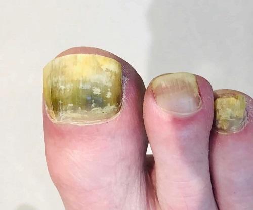 Can Toenail Fungus Spread in the Bathtub1