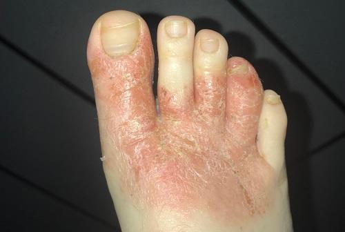 Cornmeal for Foot Fungus1